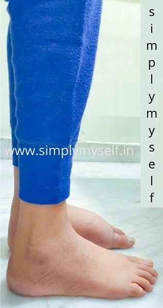 lymphedema-in-leg